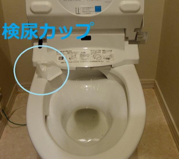 検尿カップのトイレつまり