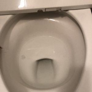検尿コップつまり点検